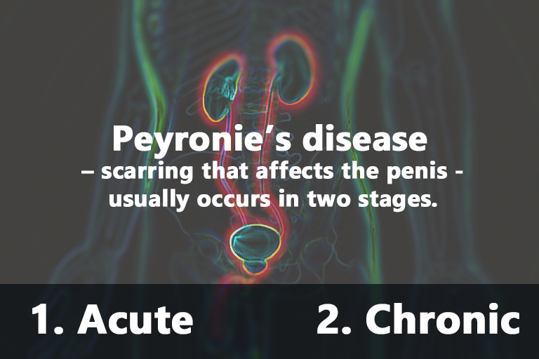 Peyronie's disease - scarring that affects the penis - usually occurs in two stages: acute and chronic.